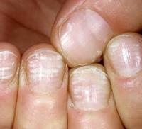 болезни ногтей на руках