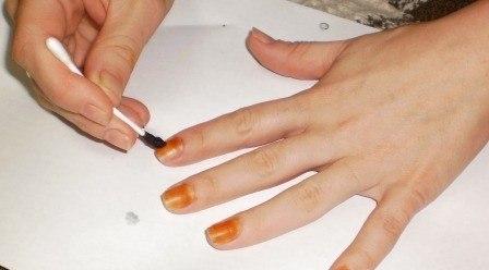 лечение грибка ногтя йодом
