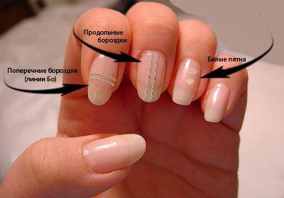 бороздки на ногтях