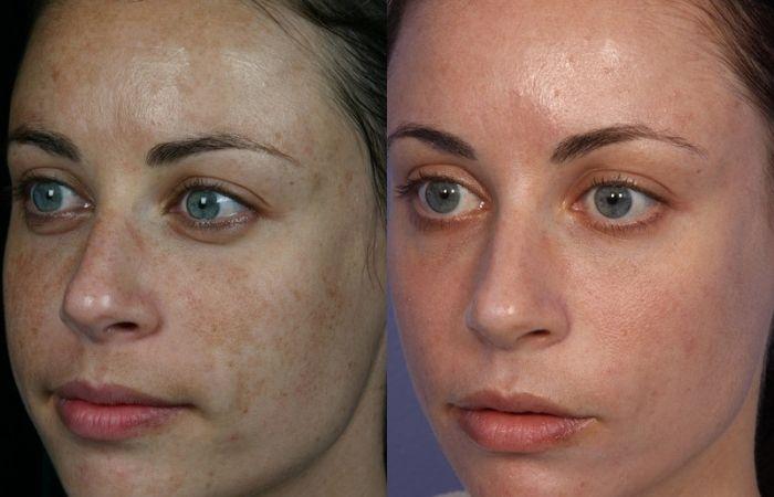 пигментные пятна на лице как избавиться
