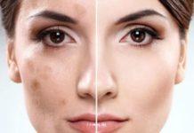 как избавиться от пигментации на лице навсегда