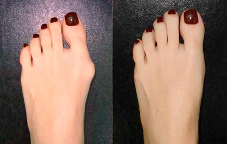 косточка на пальце ноги лечение