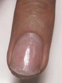 ногти после наращивания