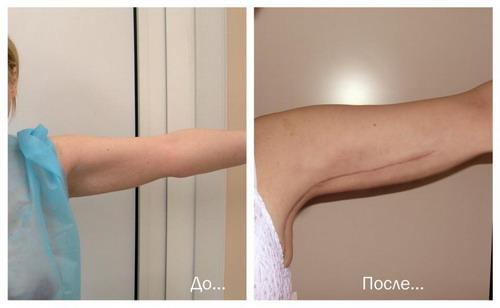 пластическая хирургия рук