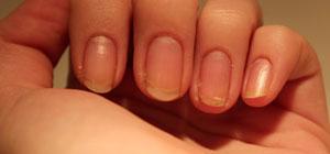 тонкие ногти